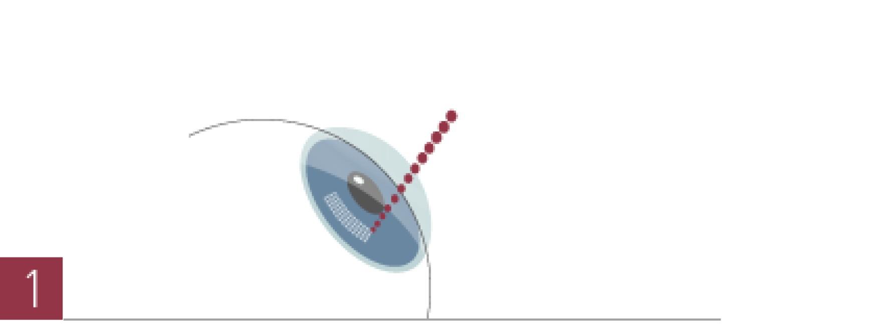 圆锥角膜的手术过程