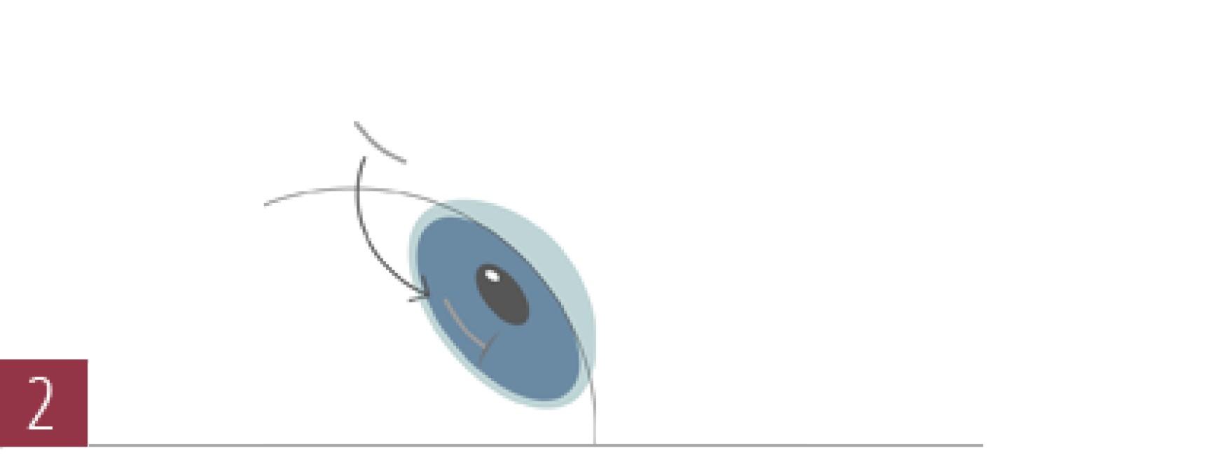 圆锥角膜手术