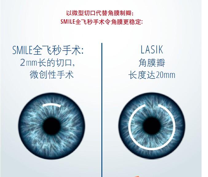 为什么选择全飞秒激光近视矫正手术