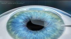 全飞秒激光手术近视