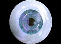 角膜基质环的相关问题解答