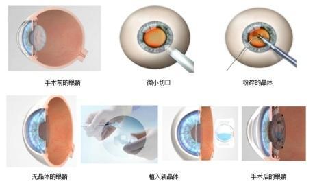 屈光晶体置换手术原理