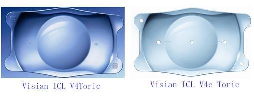 ICL晶体植入手术常见问答