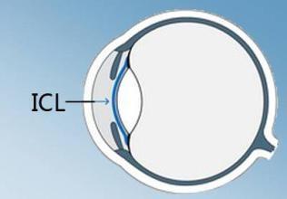 ICL晶体植入手术简介