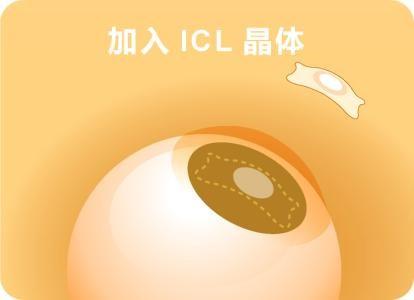 ICL手术注意事项