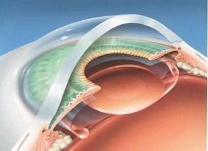 哪些人可以做ICL晶体植入手术?