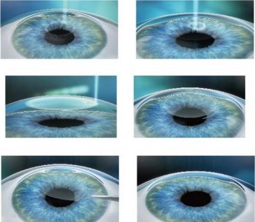 什么是全飞秒激光近视手术?