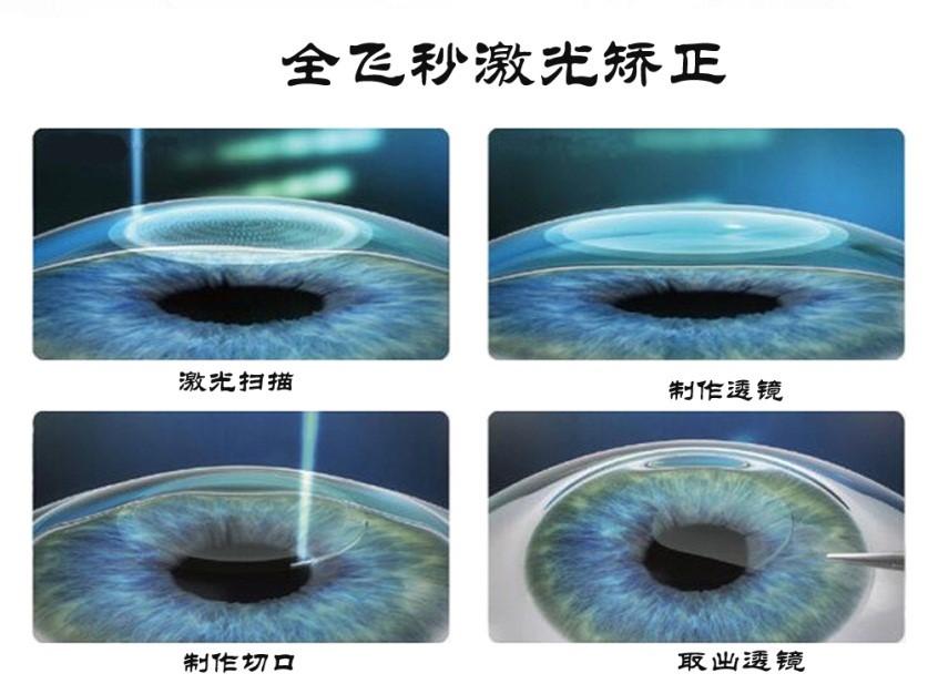 全飞秒激光矫正近视手术介绍