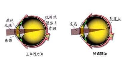 做完近视眼手术眼睛会疼吗?