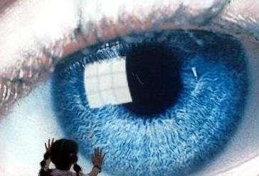 ICL晶体植入术会伤害角膜吗