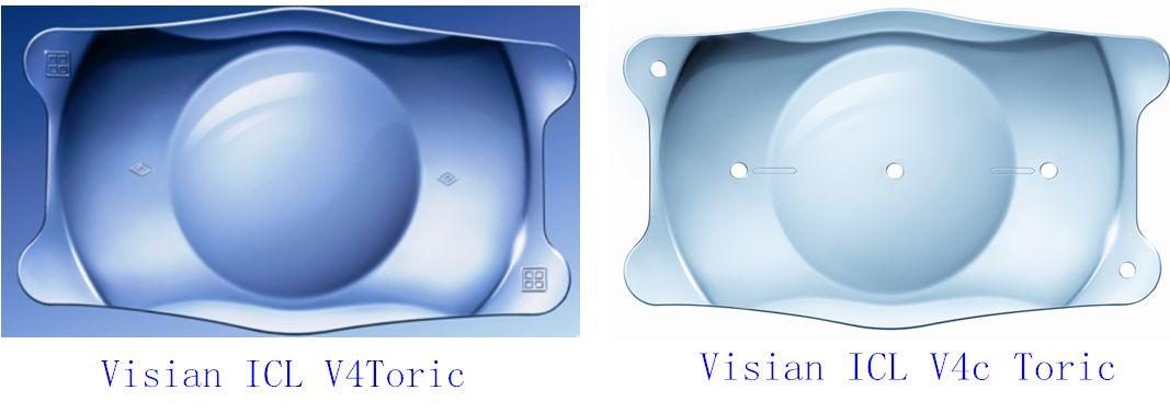 ICL晶体眼究竟是什么?
