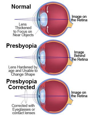 德视佳:剖析老花眼形成过程,避免手术误区