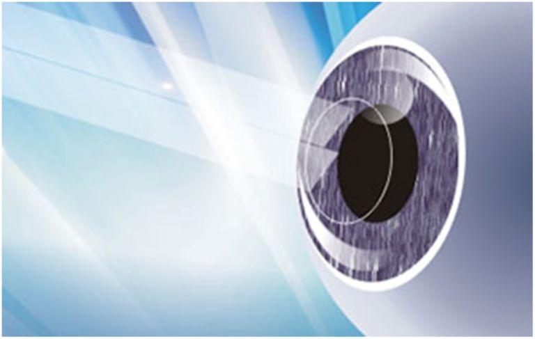 秒激光近视手术后