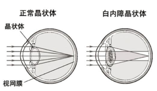 上海白内障如何手术