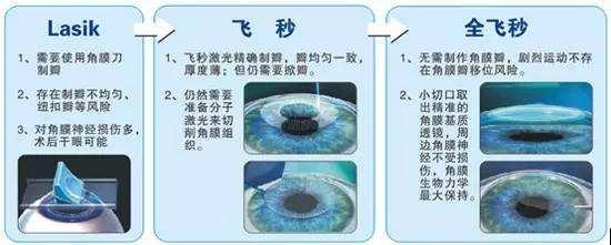 全飞秒和半飞秒激光近视手术的主要区别是什么