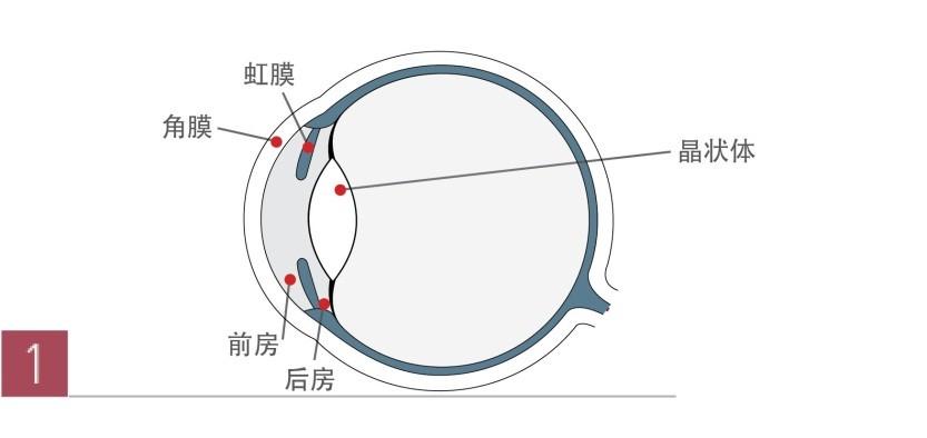 广州做近视眼手术_广州除了激光手术还可以矫正近视-德视佳官网(euroeyes)